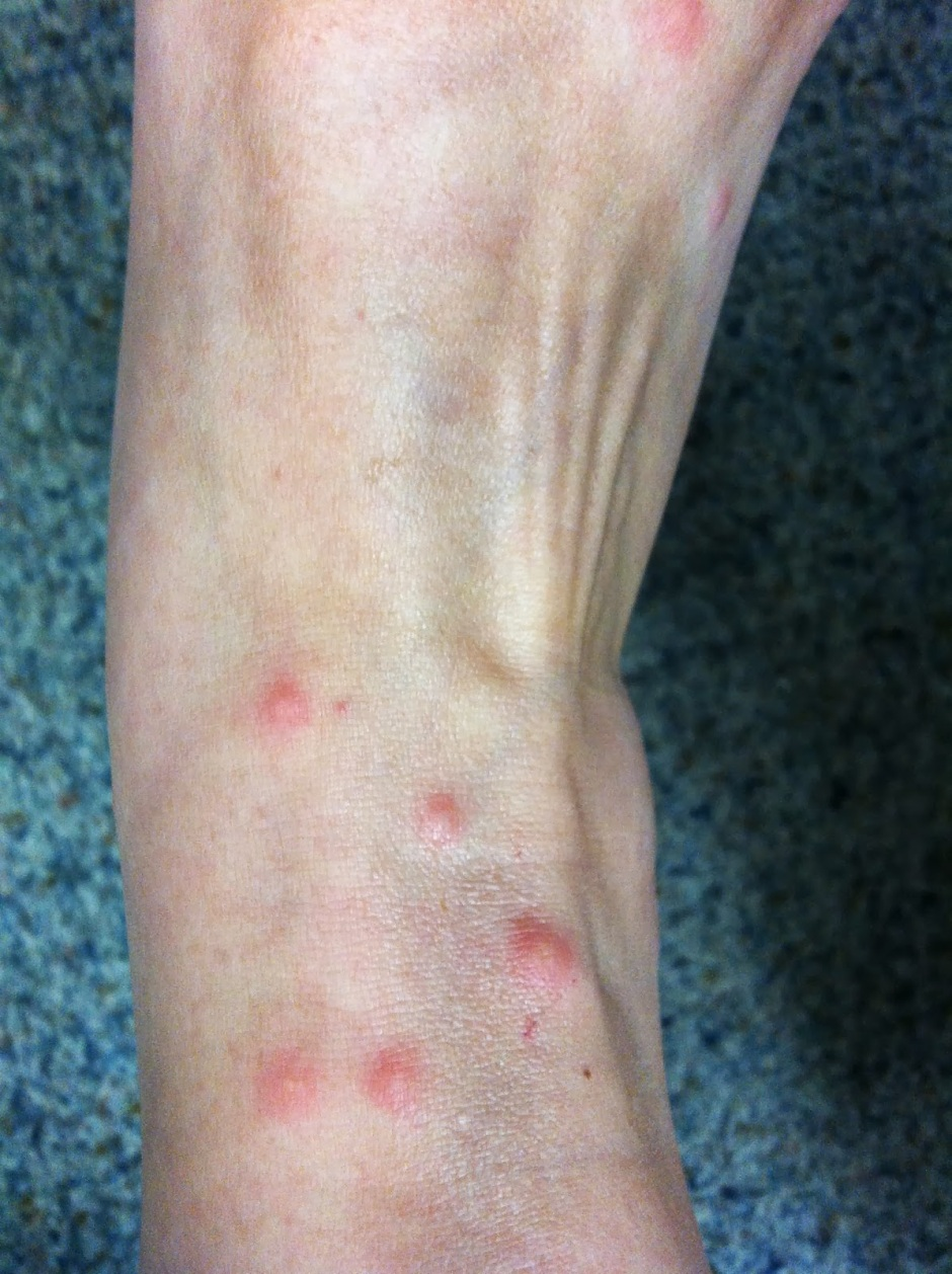 Chigger Bites on the Ankles